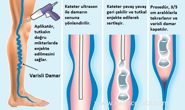 Venaseal Prosedürü